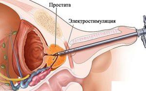 Лечение с помощью электростимуляции простатита