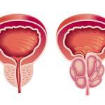 Виды и формы простатита: симптомы и особенности