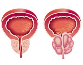 Виды и формы простатита