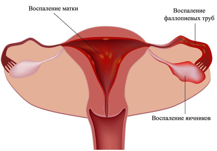 Влияет ли простатит на женское здоровье и чем он опасен Все о простатите и аденоме