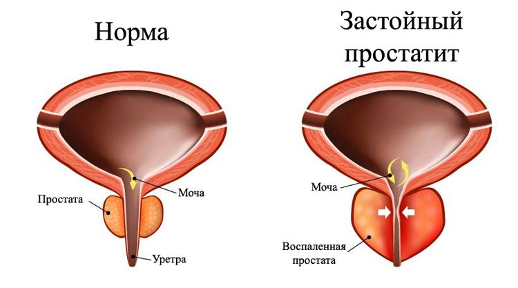 Болезнь простатита симптомы и лечение