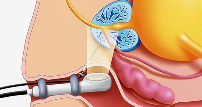 Проведение биопсия