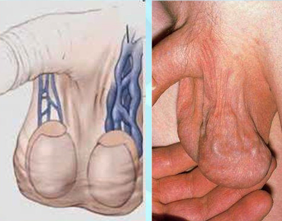 что делать когда лечение от простатита не помогает