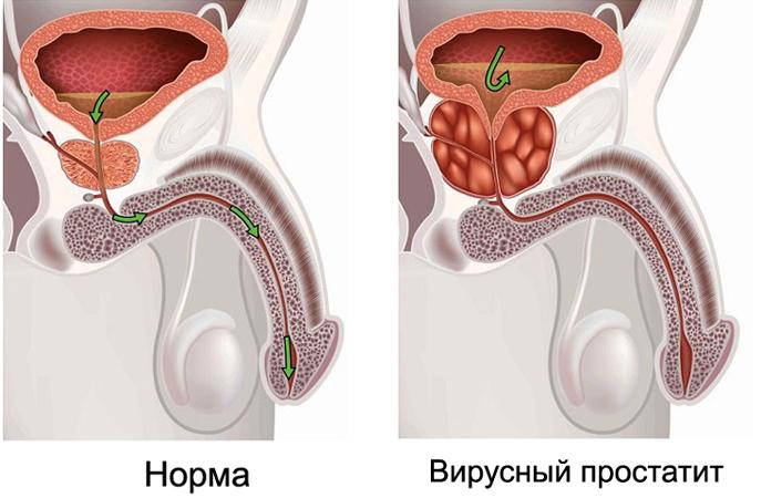 Чечевица в лечении простатита импотенции