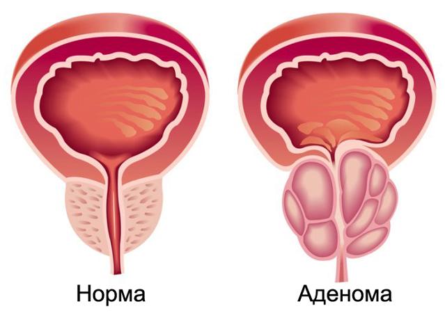 Норма и аденома простаты