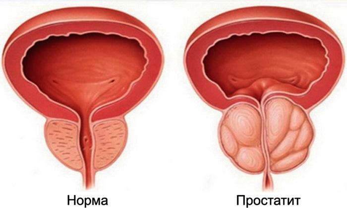 простата боль