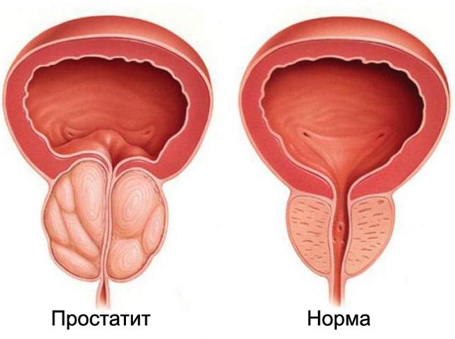 Опасно ли инфекция простатита для женщин