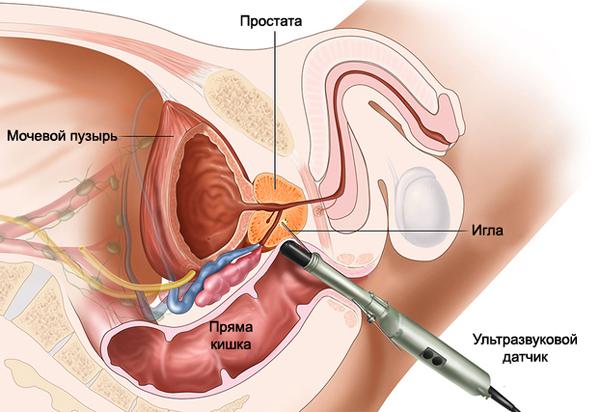 Трансректальная биопсия