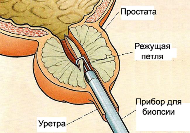 Трансуретральная биопсия