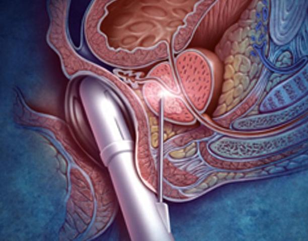 Прорывы в лечении рака простаты