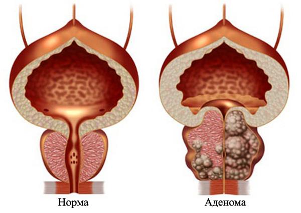Норма и аденома