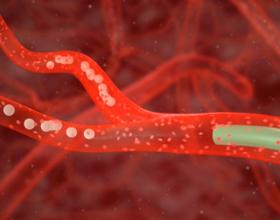 Эмболизация аденомы простаты