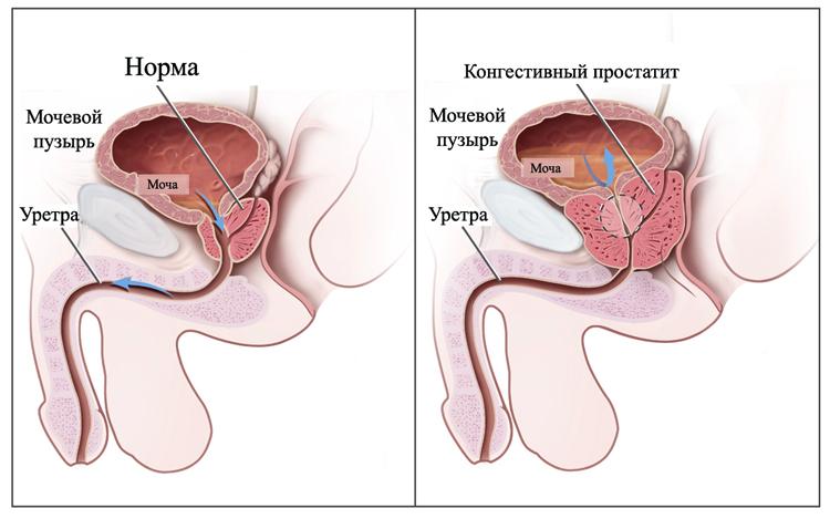 Простатит спид дизурические расстройства при простатите лечение