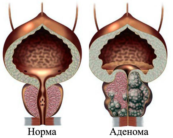 Симптомы простатита и аденомы простаты у мужчин 29