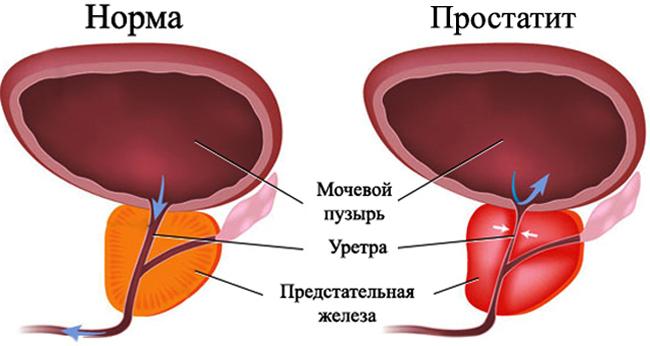 Симптомы простатита и аденомы простаты у мужчин 27