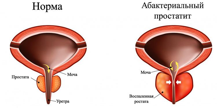 Норма и абактериальный простатит