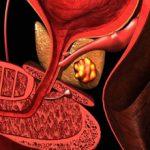Калькулезный простатит: что это, причины, симптомы и как лечить