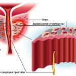 Фиброзный простатит: причины, симптомы и лечение